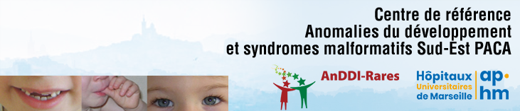 Maladies Rares  Anomalies du développement et syndromes malformatifs Sud-Est PACA dysmorphie  anomalies du développement  prise en charge globale et cohérente :  syndromes  Trisomie21  Syndrome de Williams Syndrome X-fragile Syndrome de Costello Micro délétion 22q11ou syndrome de Di George Syndrome de Rett  Syndrome CHARGE  Syndrome de Phelan Mc Dermid  Syndrome de Smith magenis